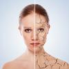 La peau sèche
