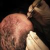 Les implants capillaires
