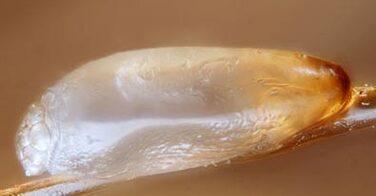 Poux et lentes : comment fonctionne la reproduction