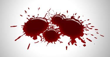Ce médecin utilise votre propre sang pour faire repousser vos cheveux - [VIDEO]