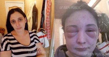 Encore un nouveau cas d'allergie à la coloration, à Dijon !