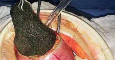 Une boule de 125g de cheveux retirés de l'estomac d'une petite fille de 5 ans